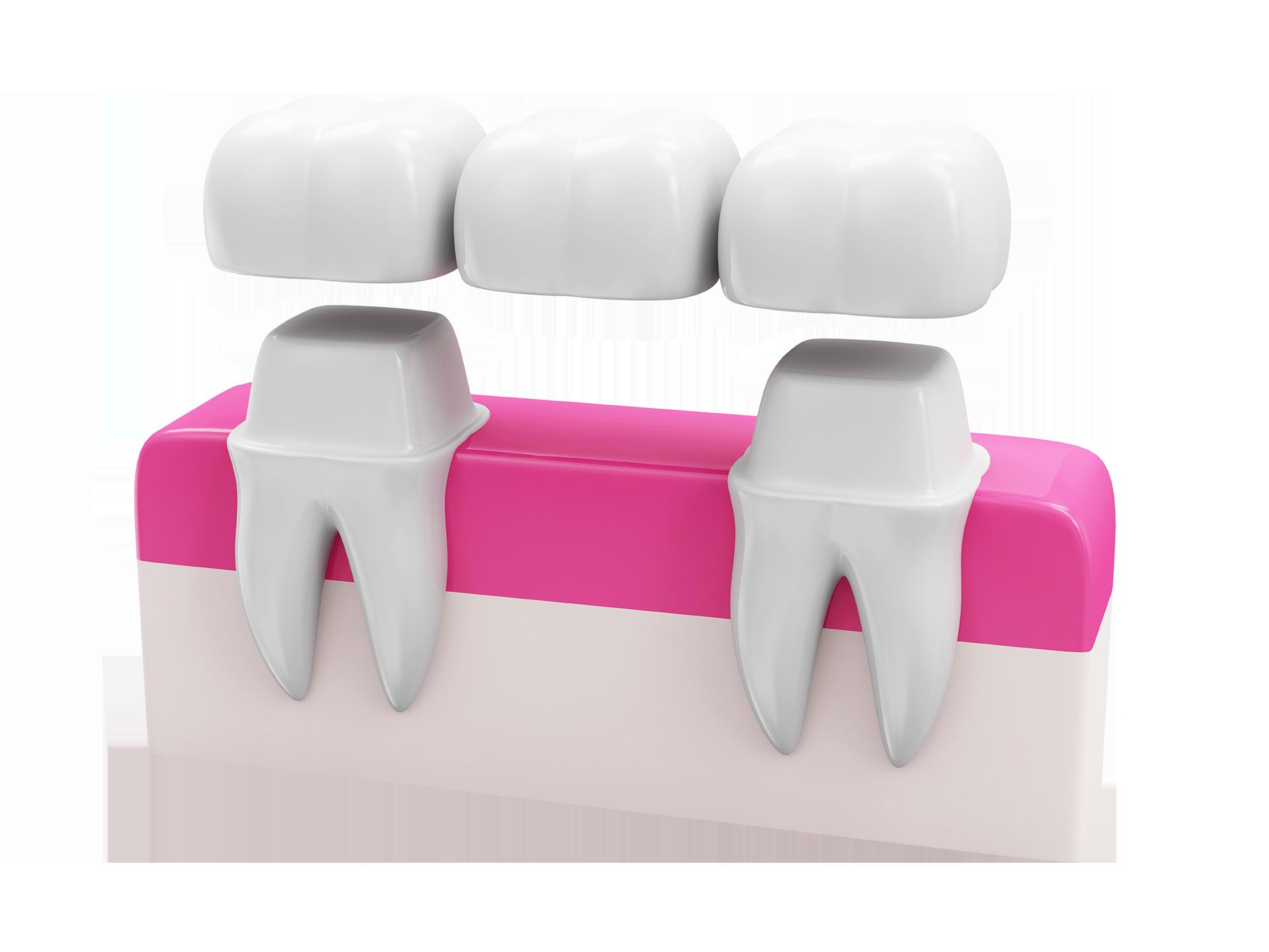 Show dental bridge