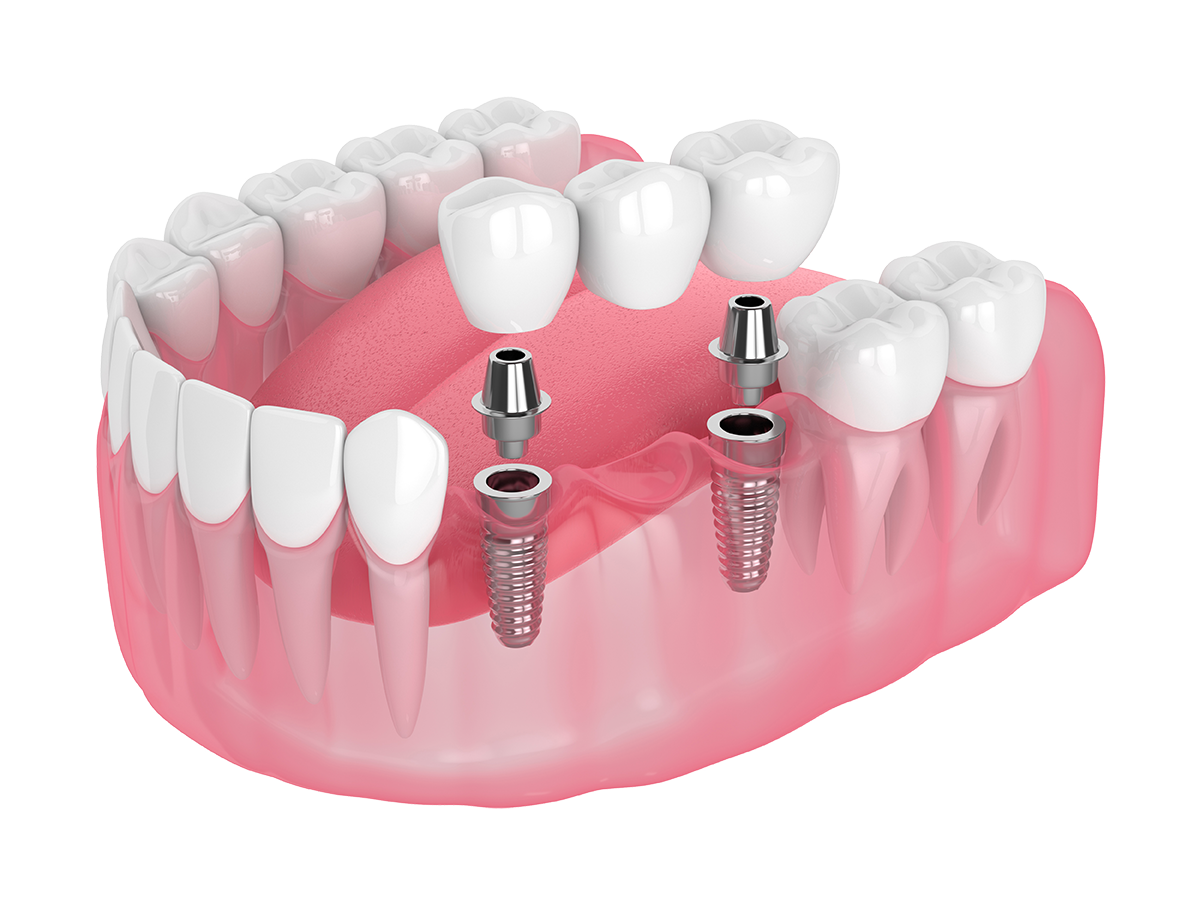 Show dental implant procedure