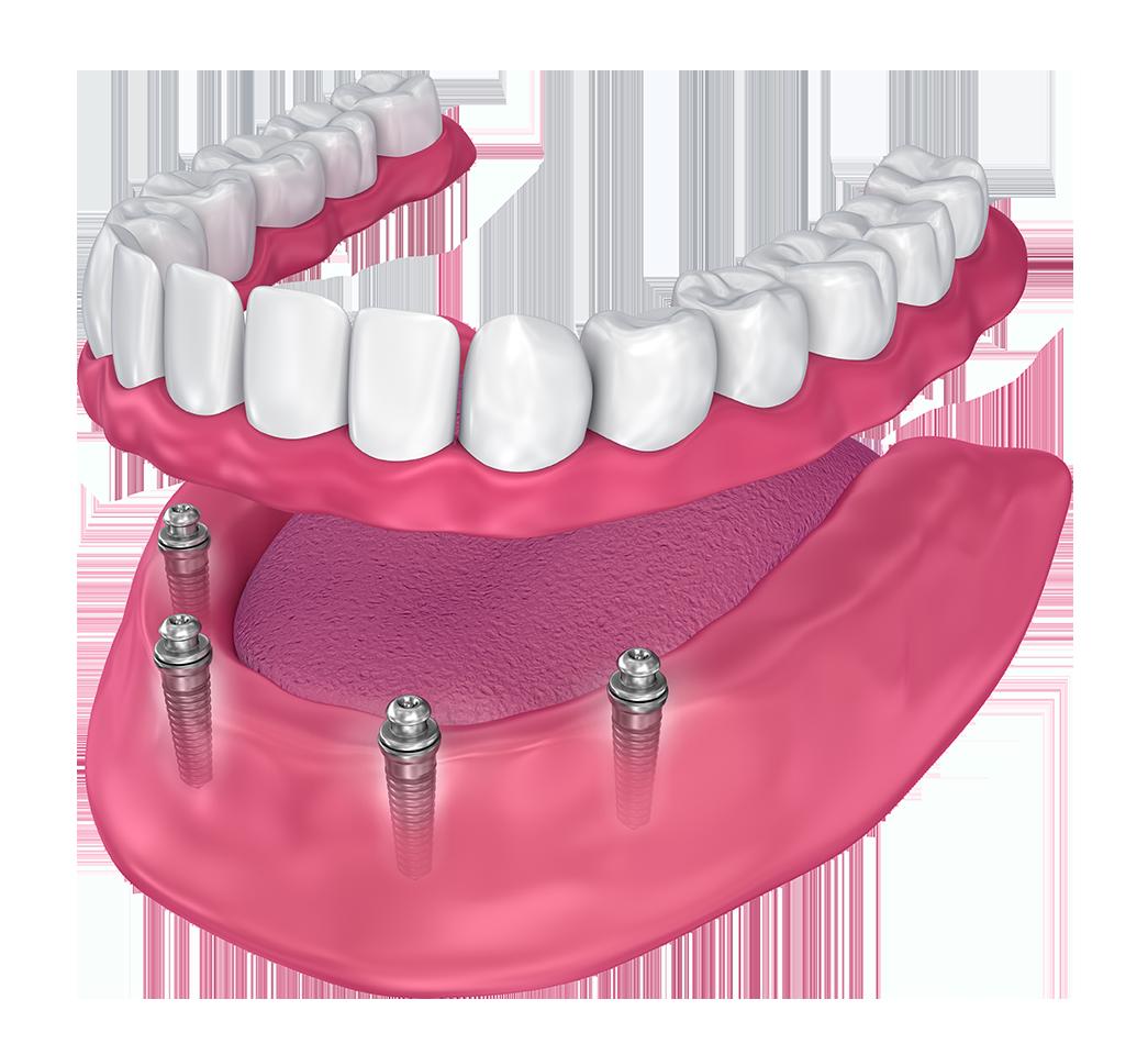 Show procedure for full dentures