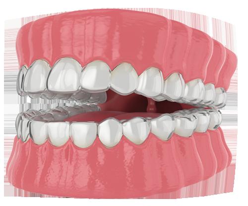 Show dental health after TMJ treatment